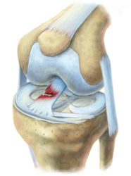 Healthy__ACL_With_Tear