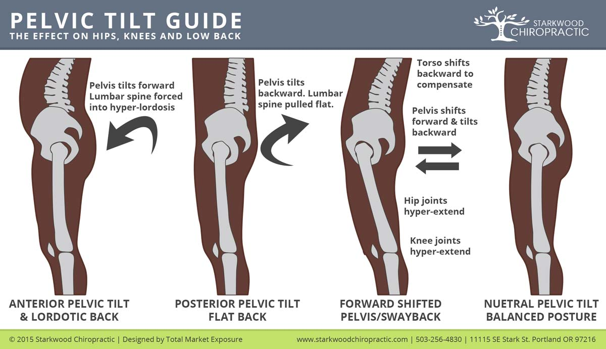 Posterior-Anterior-Pelvic-Tilt-and-Swayback2